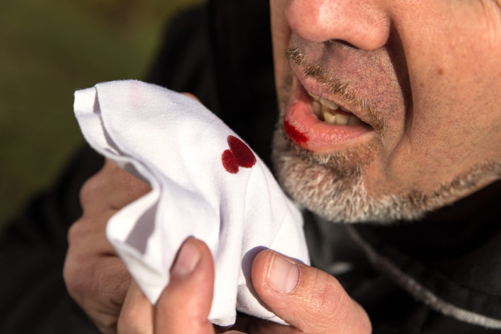 Blutiger Auswurf kann ernste Hintergründe haben, weshalb immer ein Arztbesuch anzuraten ist. Bild: Miriam Dörr - fotolia