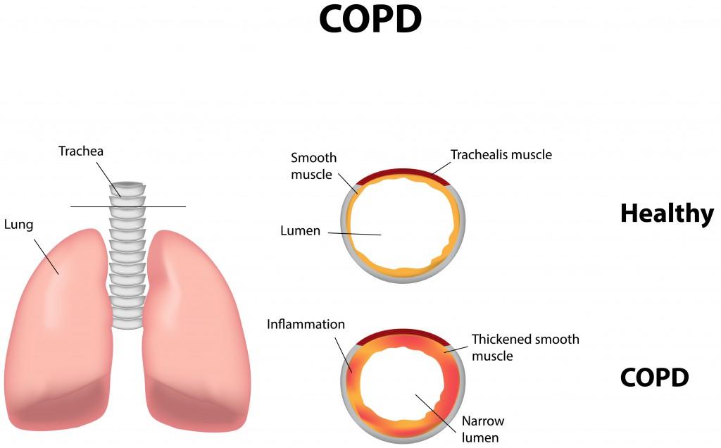 Raucherhusten im Zuge einer fortschreitenden COPD. Bild: joshya - fotolia