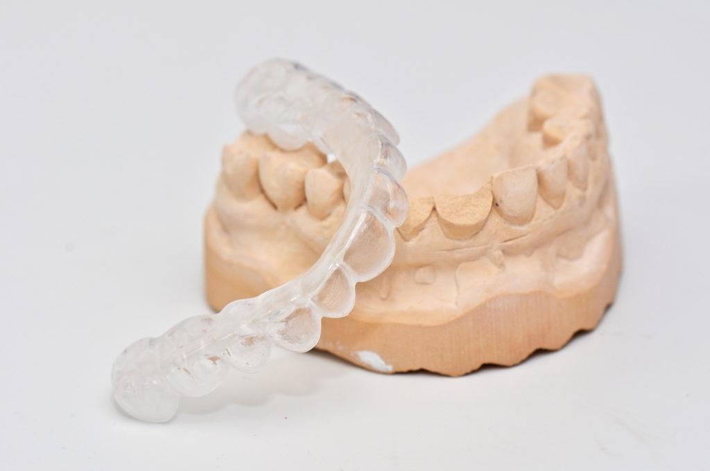 Zahnschiene kann Schnarchen verhindern. Bild: Brigitte Meckle - Fotolia