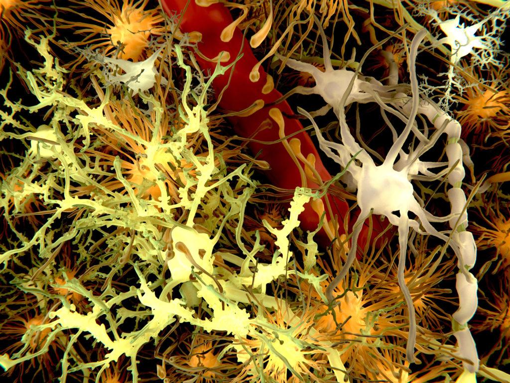 Die Vorläuferproteine der gefürchteten Plaques führen bereits zu veränderter Neurotransmitter-Aktivität. (Bild: Juan Gärtner/fotolia.com)