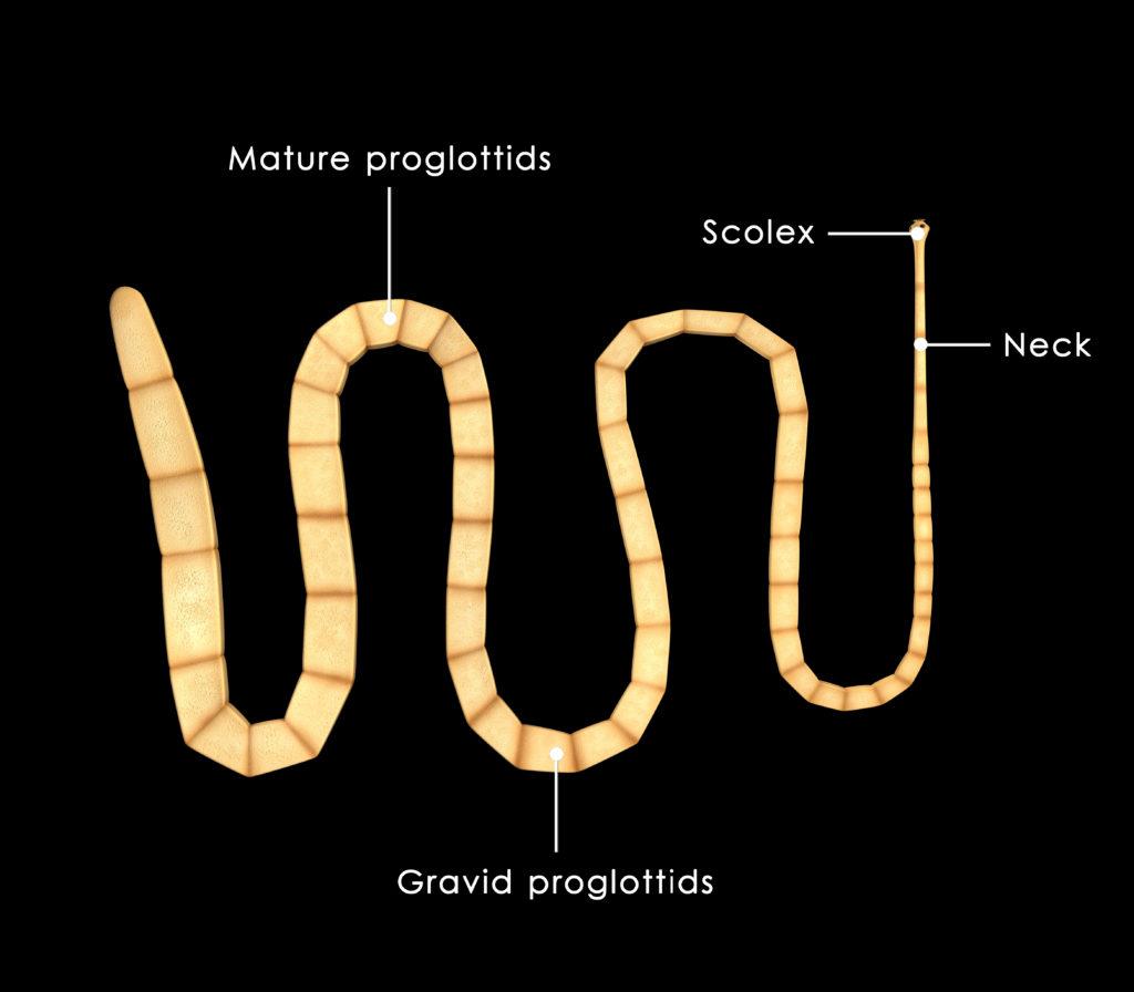 Die Larve eines Schweinebanwurms hatte sich im Gehirn eines 26-Jährigen festgesetzt. (Bild: 7activestudio/fotolia.com)