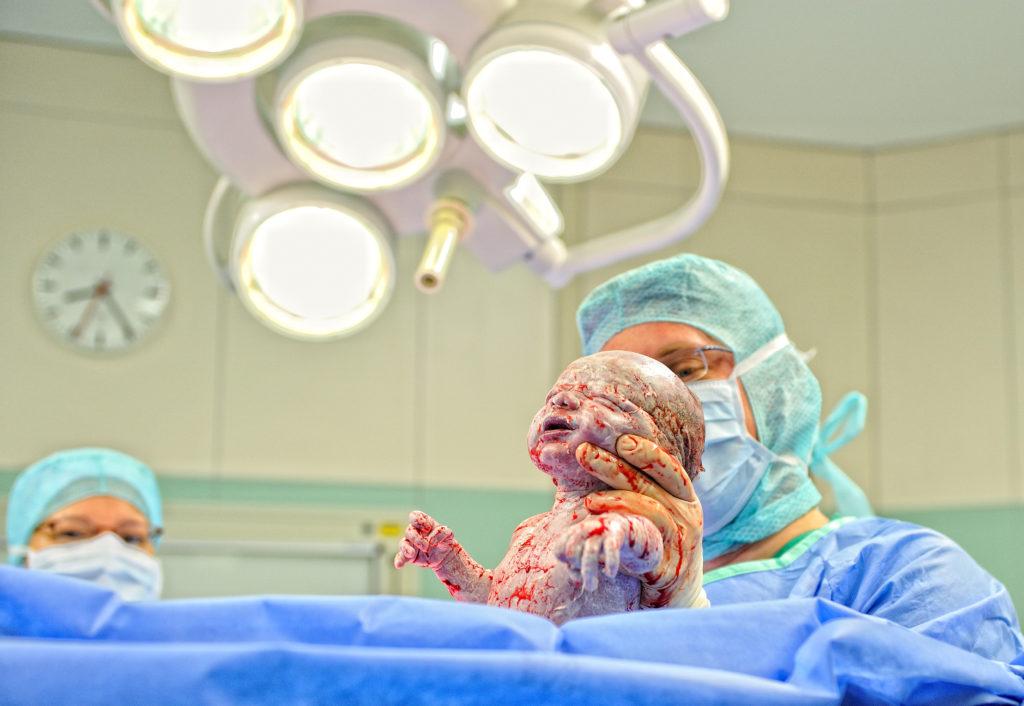 Komplikationen bei der Geburt können leicht das Leben der Mutter gefährden, wenn die medizinische Versorgung nicht angemessen ist. (Bild: GordonGrand/fotolia.com)