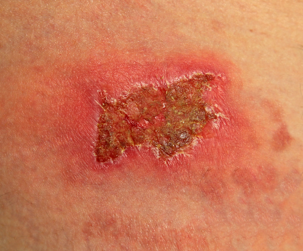 A large burn wound that has completely scabbed over.