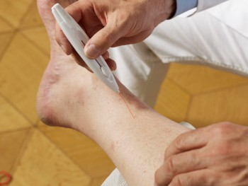 Mit verschiedenen Tests lässt sich die Schmerzwahrnehmung in den Füßen überprüfen. Bei Diabetikern ist sie oft deutlich reduziert. (Bild: Visionär/fotolia.com)