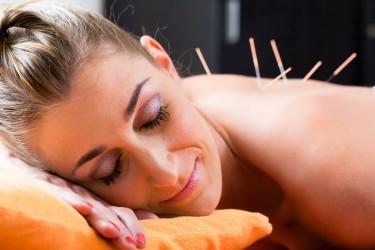 Laut einer aktuellen Studie kann Akupunktur Nackenbeschwerden lindern. Bild: Kzenon - fotolia