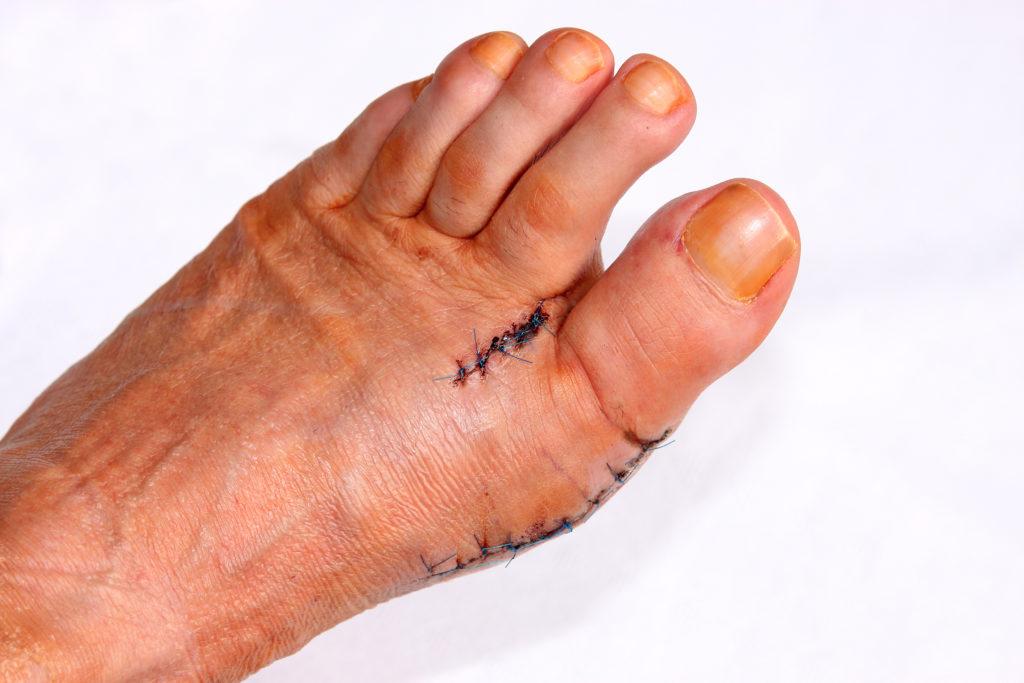 Schwerwiegende Folgen: Nicht selten müssen Hammerzehen operiert werden. Bild: RRF - fotolia