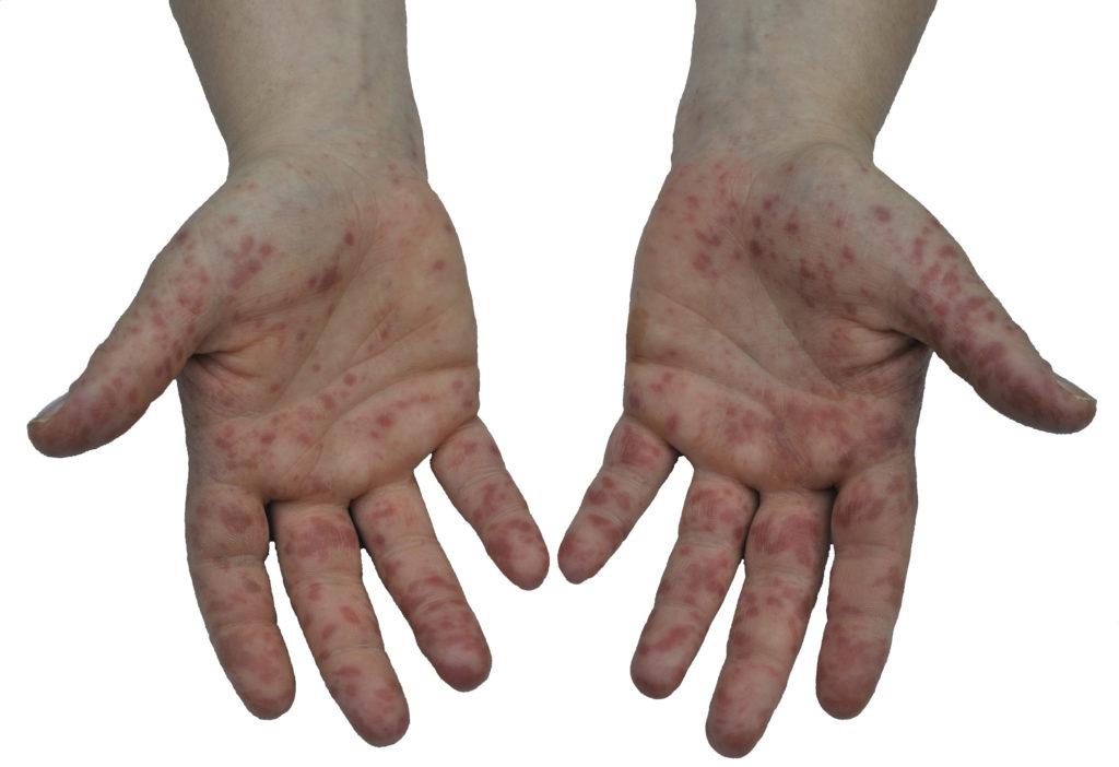 Hand-Fuss-Mund-Erkrankung. Bild: GordonGrand - fotolia