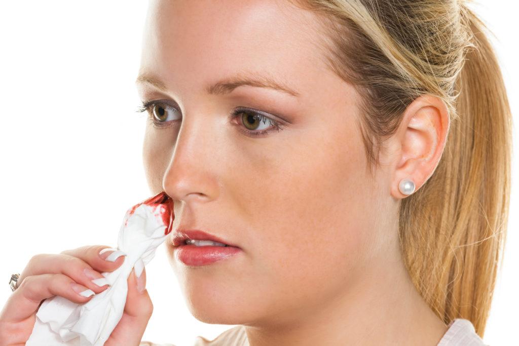 Nasenbluten ist meistens harmlos. Wenn es regelmäßig auftritt, sollte ein Arzt aufgesucht werden. Bild: Gina Sanders - fotolia