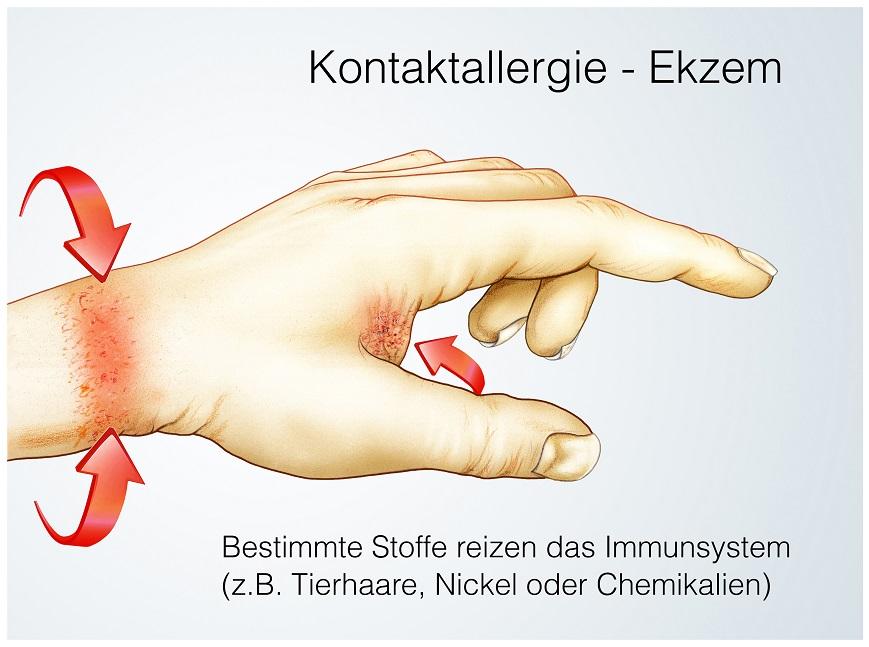 Nickelallergie: Hautrötungen, Jucken und Schmerzen. Bild: Henrie - fotolia