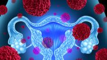 Die tödlichen Verläufe bei Eierstockkrebs lassen sich möglicherweise durch einen Screening-Bluttest reduzieren. (Bild: freshidea/fotolia.com)