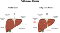 Die Entwicklung einer Fettleber verläuft oftmals über längere Zeit beschwerdefrei, wodurch eine frühzeitige Diagnose erschwert wird. (Bild: joshya/fotolia.com)