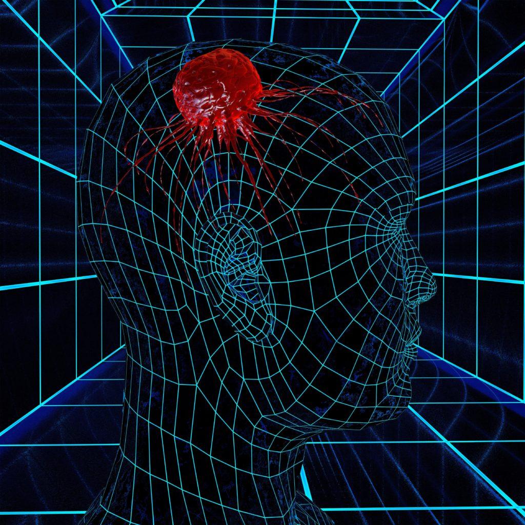 Gehirntumore lassen sich durch elektromagnetische Feldtherapie am Wachstum hindern. (Bild: fotoliaxrender/fotolia.com)