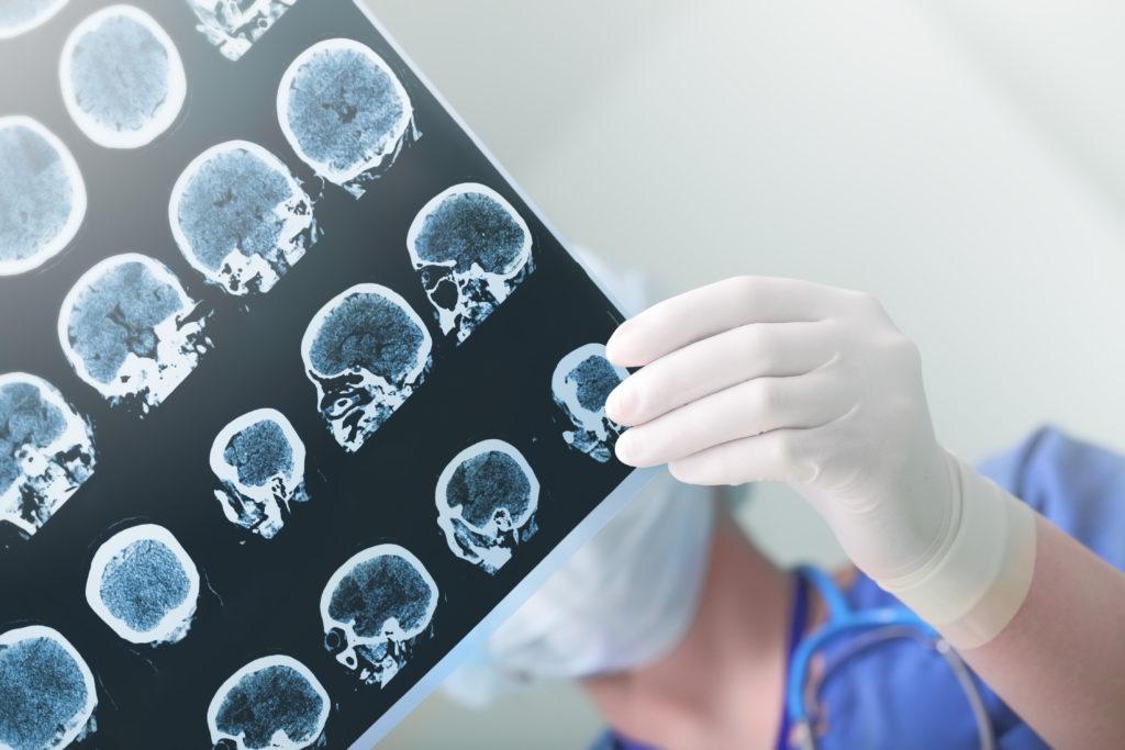 Mediziner planen die erste Kopftransplantation weltweit für das Jahr 2017. (Bild: sudok1/fotolia.com)