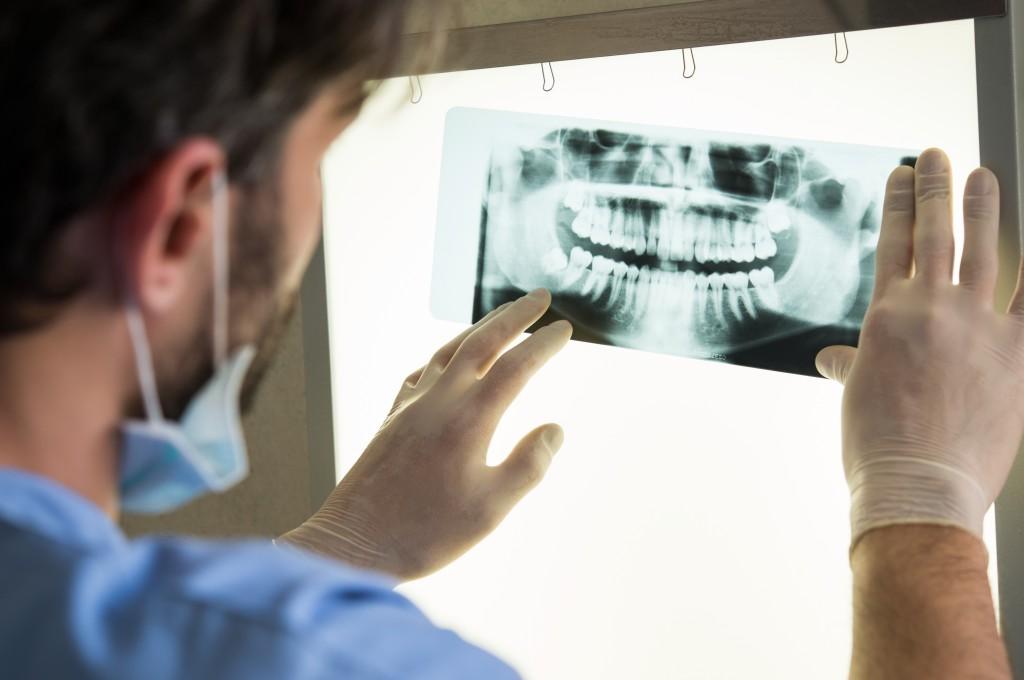 Röntgenaufnahmen beim Zahnarzt führen zu einem erhhten Krebsrisiko und sollten daher möglichst selten erfolgen. (Bild: Rido/fotolia.com)