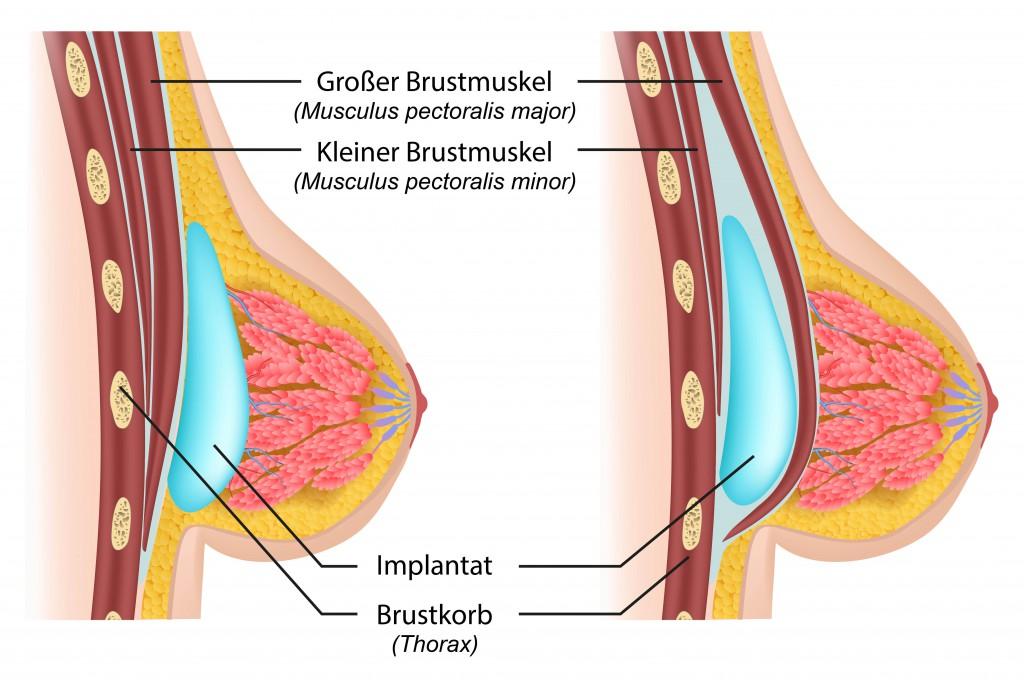 Vor allem Brustvergrößerungen werden häufig durchgeführt. Bild: bilderzwerg - fotolia