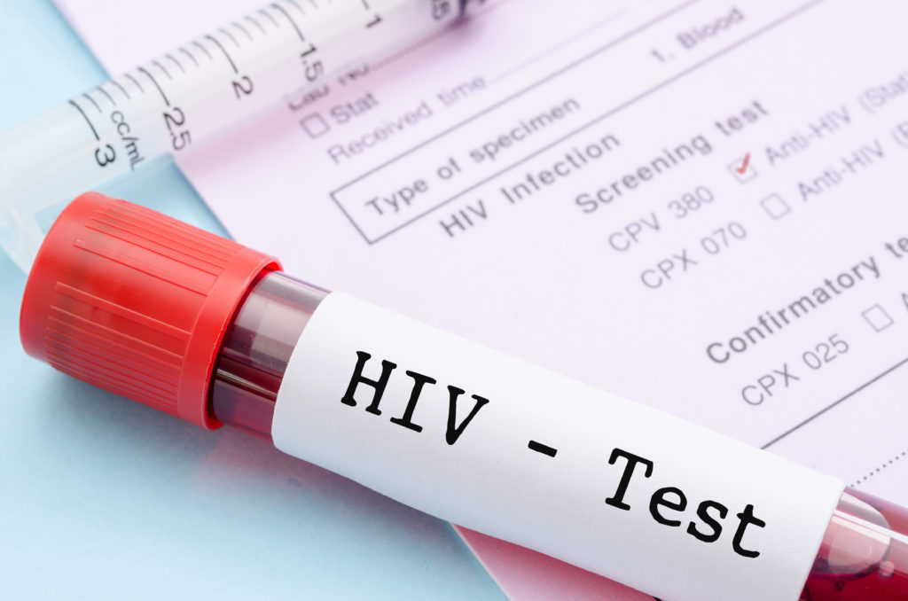 Zunahme der HIV-Infektionen. Bild: gamjai - fotolia