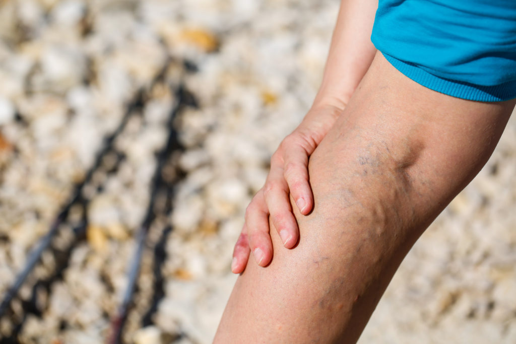 Schmerzen an der Wade sind ein deutliches Warnzeichen. Bild: zlikovec - fotolia