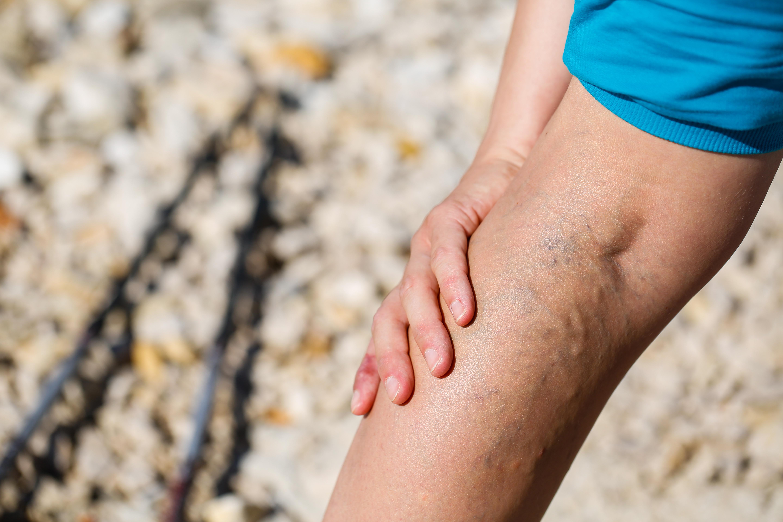 Wärmegefühl Im Bein