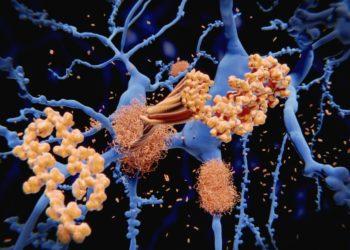 Ablagerungen im Gehirn, die im Zuge einer Alzheimer-Krankheit entstehen.