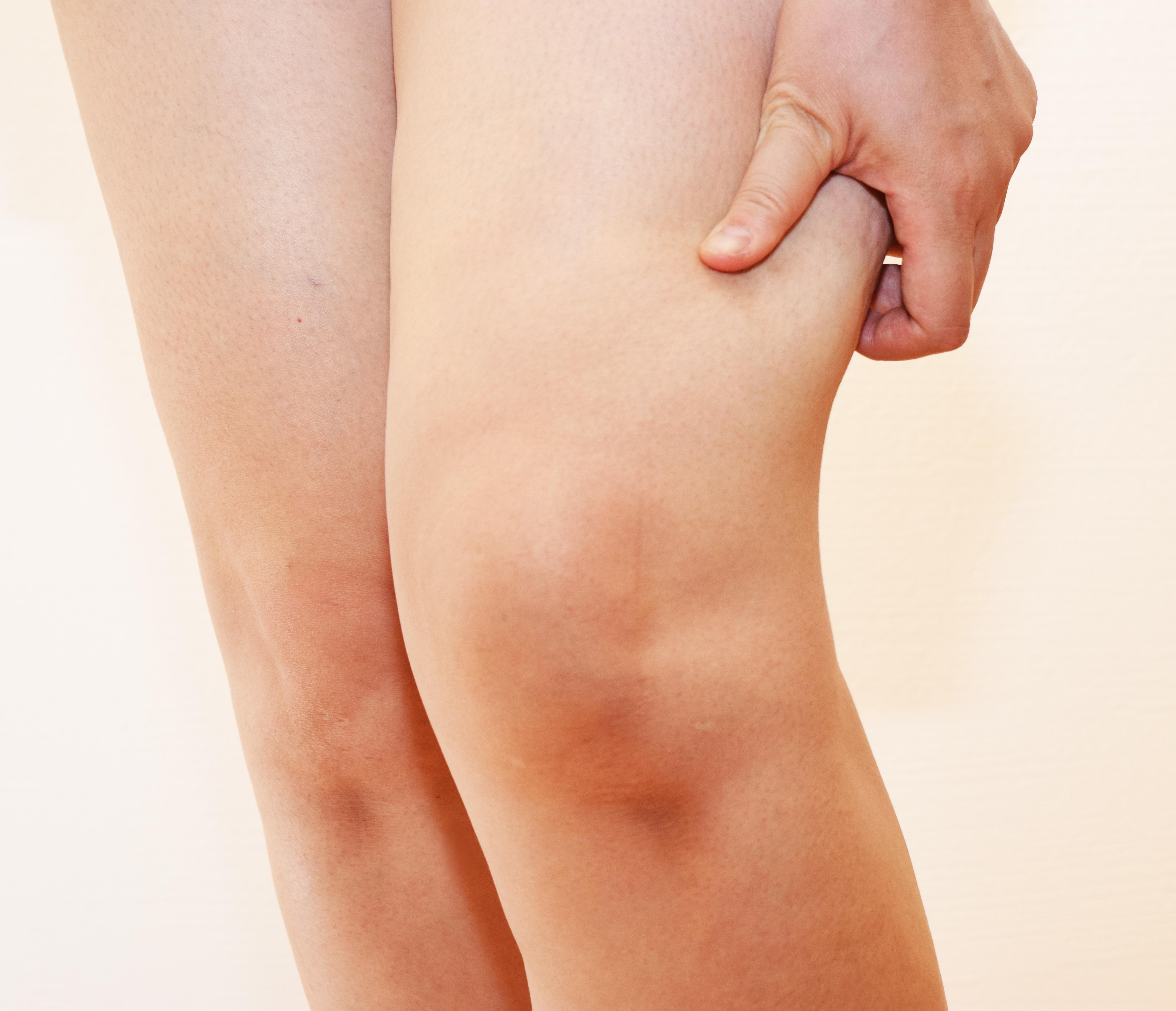 Gicht Knie