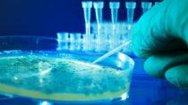 Auch in Deutschland tragen viele Bakterienstämme das Resistenzgen mcr-1 in sich. (Bild: science photo/fotolia.com)