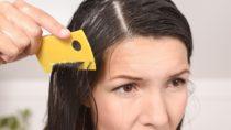 Ein spezieller Läusekamm ist wichtig, um die kleinen Plagegeister im Haar gut zu erkennen. (Bild: Lars Zahner/fotolia.com)