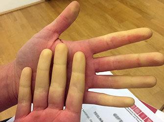 Die bleichen Finger bei Morbus Raynaud sind Folge einer Durchblutungsstörung und meist harmlos. (Bild: Medizinische Universität Wien)