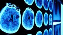 Bei der zukünftigen Behandlungen von Gehirntumoren könnten umgewandelte Hautzellen helfen. (Bild: sudok1/fotolia.com)