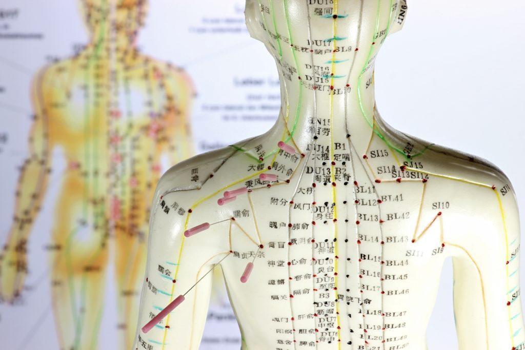 Akupunktur-Behandlungen haben sich bei vielen Krankheiten bewährt. Neueste Studien bestätigen nun auch die positive Wirkung bei Fibromyalgie. (Bild: Björn Wylezich/fotolia.com)