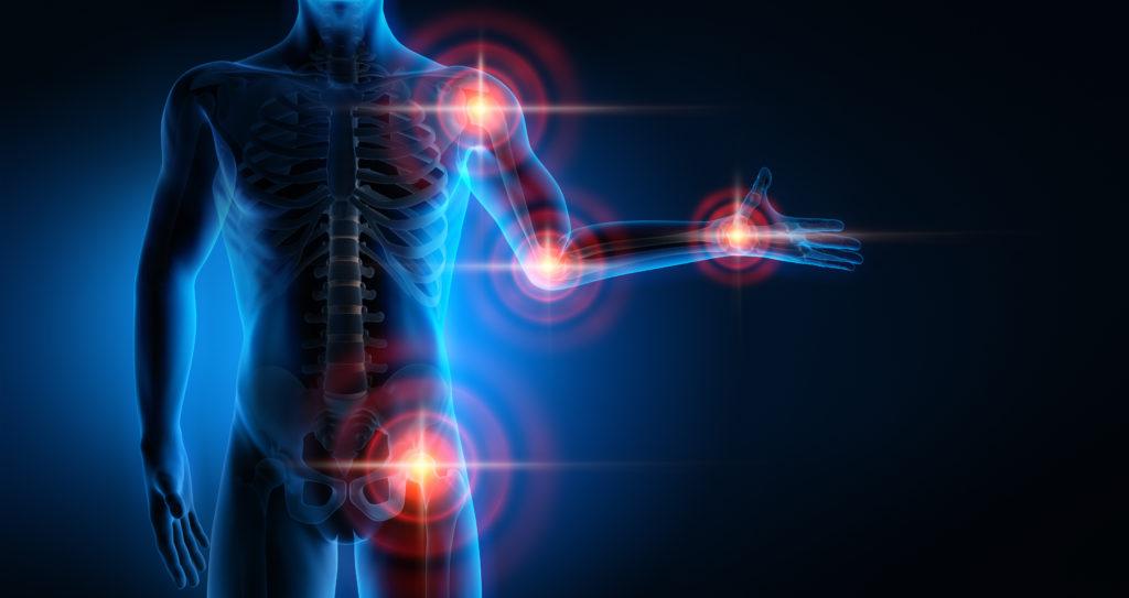 Eine Arthrose kann theoretisch in sämtlichen Gelenken auftreten und erhebliche Schmerzen verursachen. (Bild: psdesign1/fotolia.com)