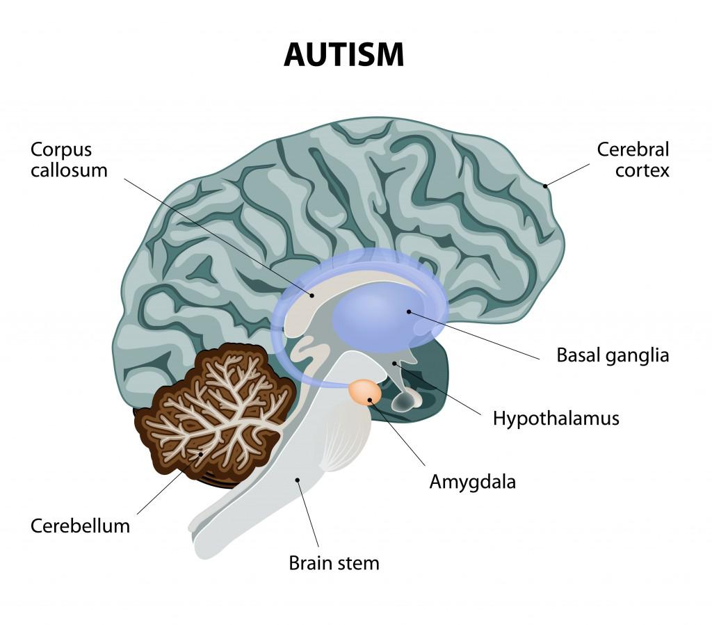 Autisten zeigen eine veränderte Verarbeitung der Informationen im Gehirn, was mit kongnitiven un sozialen Einschränkungen aber auch mit besonderen Fähigkeiten verbunden sein kann. (Bild: designua/fotolia.com)
