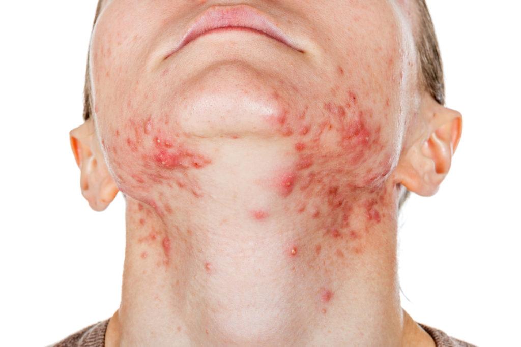 Hautausschlag im Gesicht ist für die Betroffenen oftmals auch mit psychischen Belastungen verbunden. (Bild: Ocskay Bence/fotolia.com)