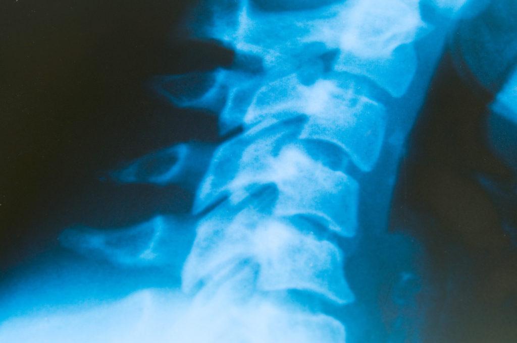 Ein neues Implantat hilft die Bewegungsabläufe nach einer Rückenmarksverletzung wieder herzustellen. (Bild: VRD/fotolia.com)