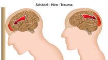 Erhöhtes Suizidrisiko durch Gehirnerschütterung. Bild: bilderzwerg - fotolia