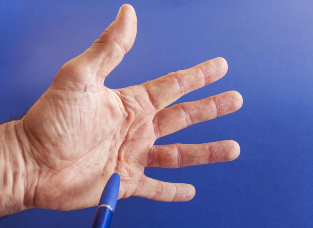 geplatzte ader - ursachen, symptome und behandlung