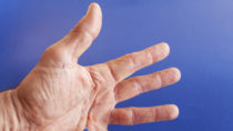 Geplatzte Ader auf der Hand. Bild: perfectmatch -fotolia