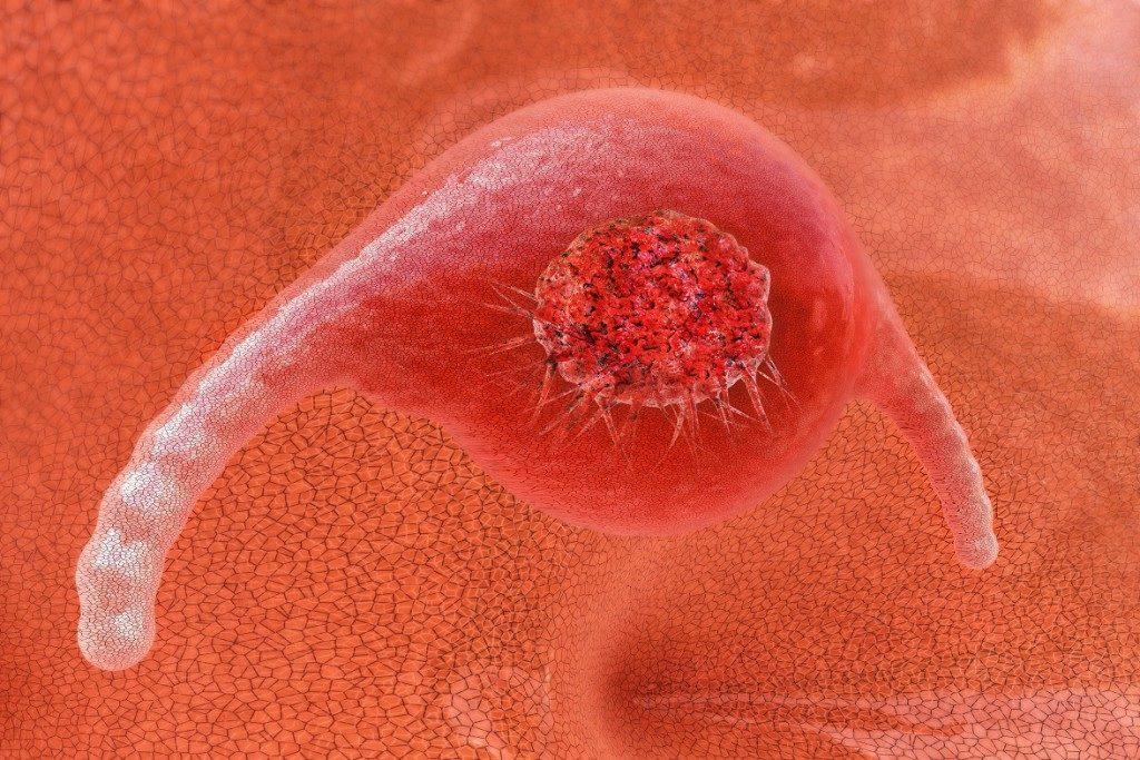 Krebszellen einer bereits verstorbenen Patientin teilen sich bis heute. Bild: fotoliaxrender - fotolia