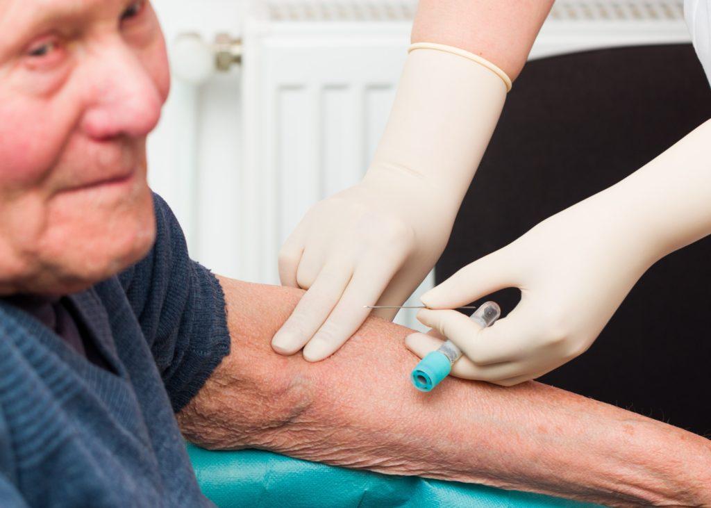 Mittels eines neu entwickelten Alzheimer-Bluttests könnte die Diagnose bereits 15 Jahre vor Ausbruch der Krankheit bedingen. (Bild: Barabas Attila/fotolia.com)