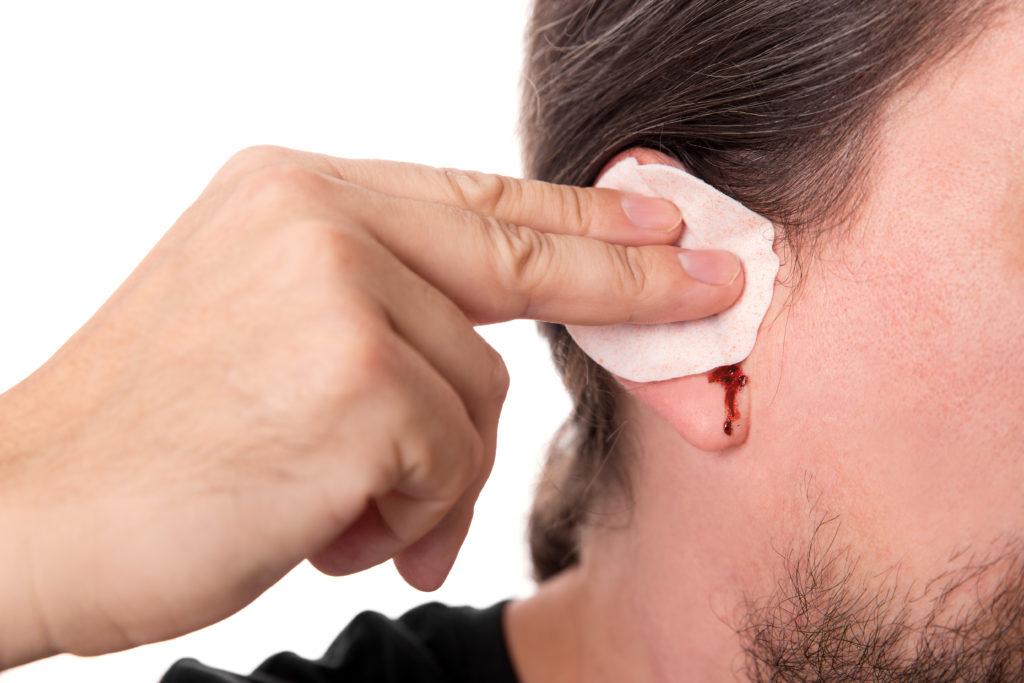Ohrenbluten kann Folge von Verletzungen beim Reinigen sein, aber auch auf eine ernsthafte Erkrankung hinweisen. (Bild: Miriam Dörr/fotolia.com)