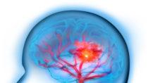 Treten Anzeichen eines Hirninfarkts wie Kopfschmerzen, Schwindel, Sprachstörungen oder Lähmungserscheinungen auf, sollte schnellstmöglich eine notärztliche Versorgung erfolgen. (Bild: psdesign1/fotolia.a.com)