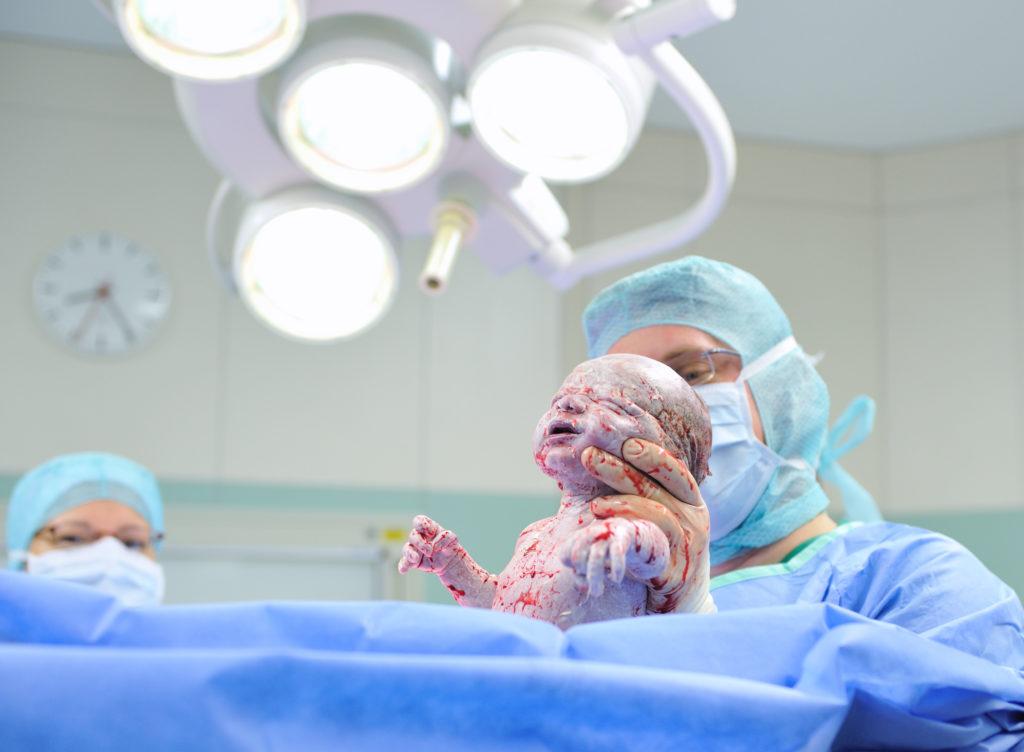 Kaisernschnitte werden von den Kliniken immer häufiger als Not-Operationen abgerechnet, vermutlich aus wirtschaftlichen Gründen. (Bild: GordonGrand/fotolia.com)