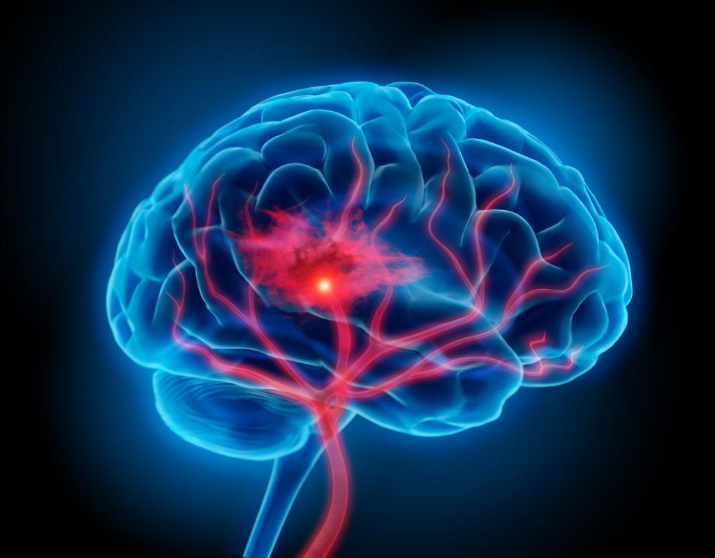 Durch eine Hirnstimulation kann das Sprachvermögen nach einem Schlaganfall deutlich verbessert werden. (Bild: psdesign1/fotolia.com)