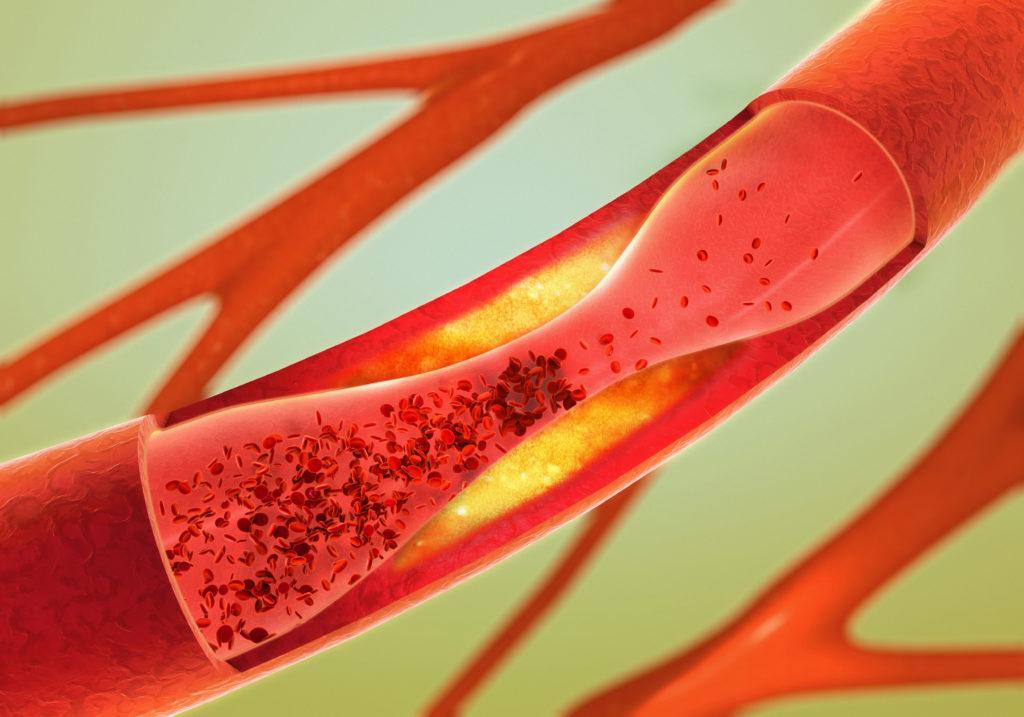 Arteriosklerose: Cholesterin ist eine Ursache hierfür. Bild: Christoph Burgstedt - fotolia