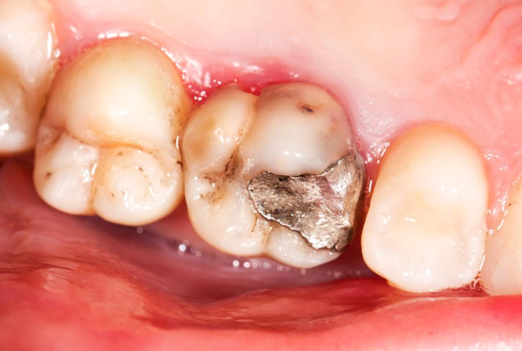 Amalgam-Füllung: Viele Patienten fühlen eine Art Allergie. Restlos aufgeklärt ist dieses Phänomen noch nicht. Bild: Zsolt Bota Finna - fotolia
