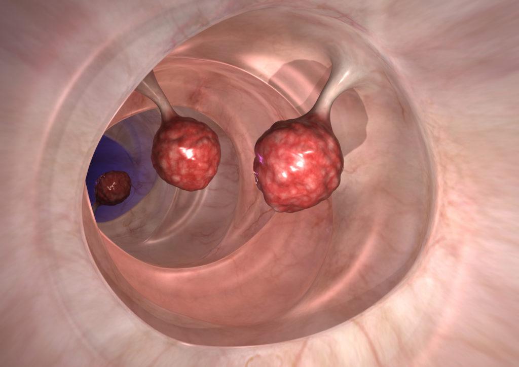 Darm-Diagnosen mit Polypen. Bild: Alex - fotolia