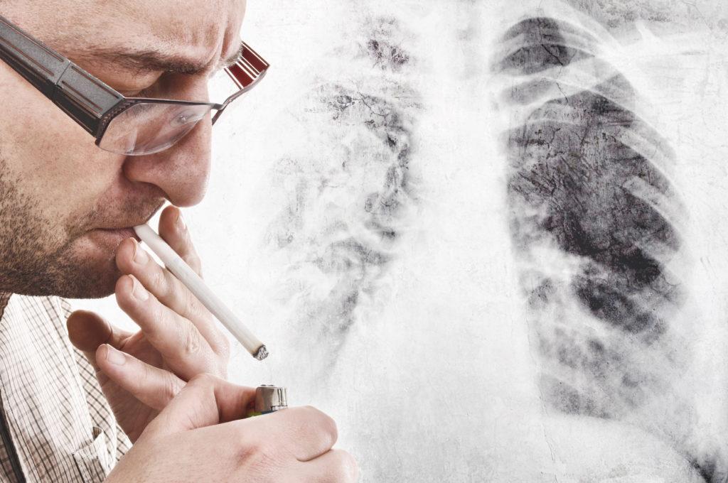 Auch nach dem Rauchstopp ein erhöhtes Lungenkrebsrisiko. Bild: © igor - fotolia