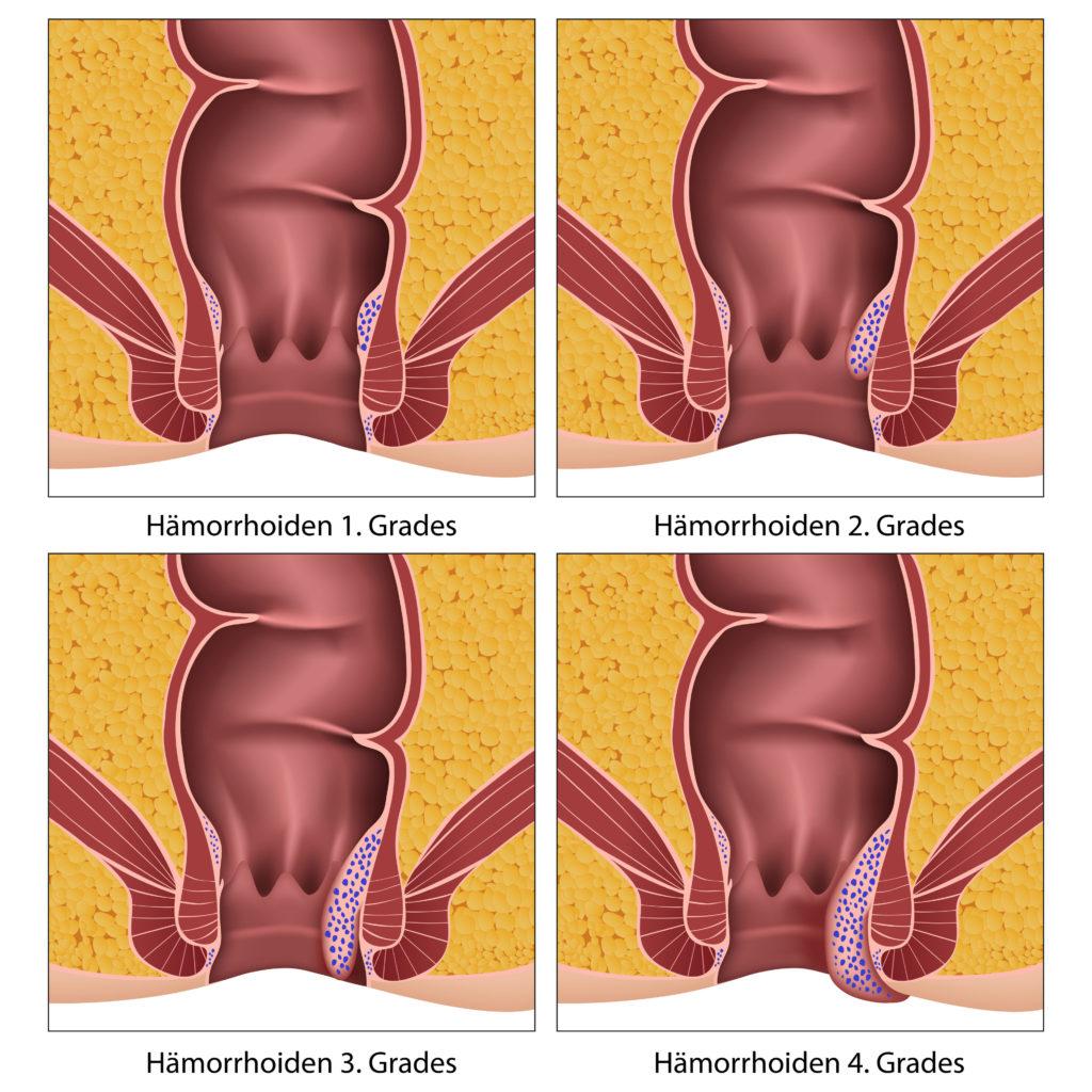 Häufig Ursache für Blutungen am After sind Hämorrhoiden. (Bild: bilderzwerg/fotolia.com)