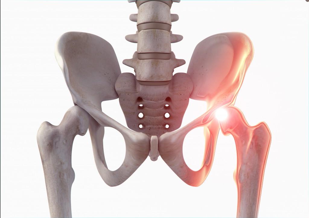 Einseitige Becken- bzw. Hüftschmerzen sind zum Beispiel häufig bei einer Arthrose festzustellen. (Bild: electrozebra.com/fotolia.com)