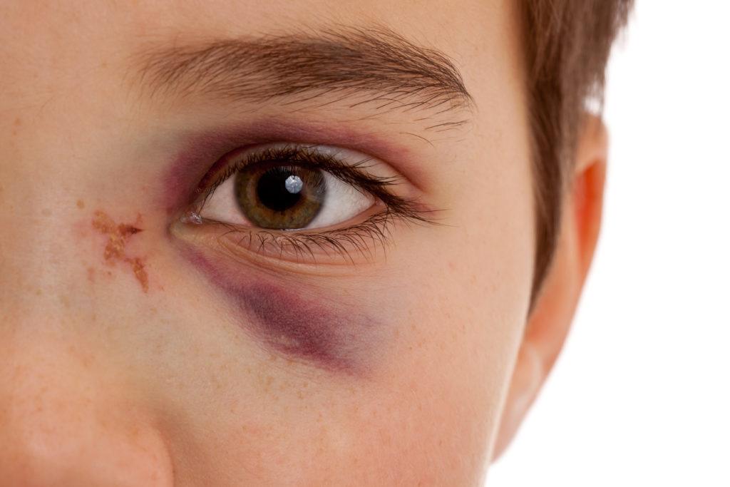Bei einem blauen Auge bekommt man oft zu hören, dass ein Stück rohes Fleisch helfen soll. Ein Experte erklärt was an diesem Rat dran ist. (Bild: Markus Bormann/fotolia.com)