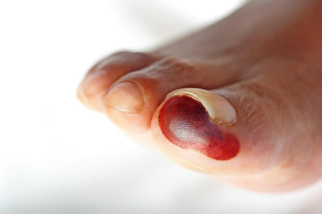 Oft werden Verletzungen an den Füßen bei Diabetes längere Zeit nicht bemerkt und es kann ein diabetisches Fußsyndrom entstehen. (Bild: HBK/fotolia.com)